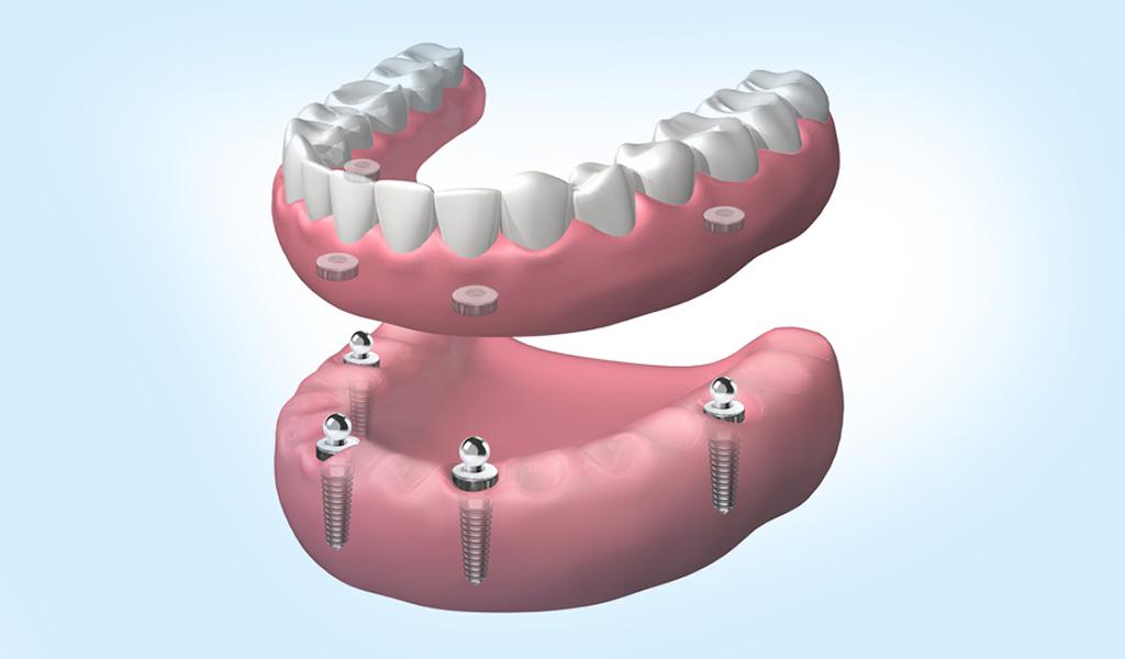 implantes dentales en Santa Coloma de Gramenet
